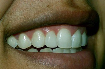 Reshaped front tooth