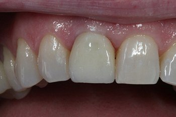 Flawlessly repaired front tooth