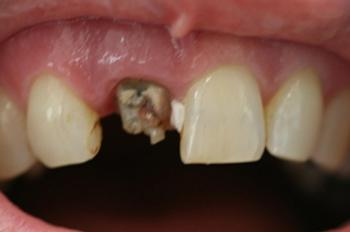 Severely decayed front tooth