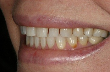 Side teeth with large gaps