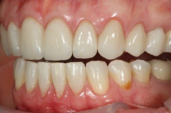 Top teeth with perfect spacing