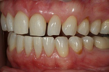 Top teeth with tooth much space between