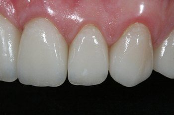 Reshaped flawless front tooth